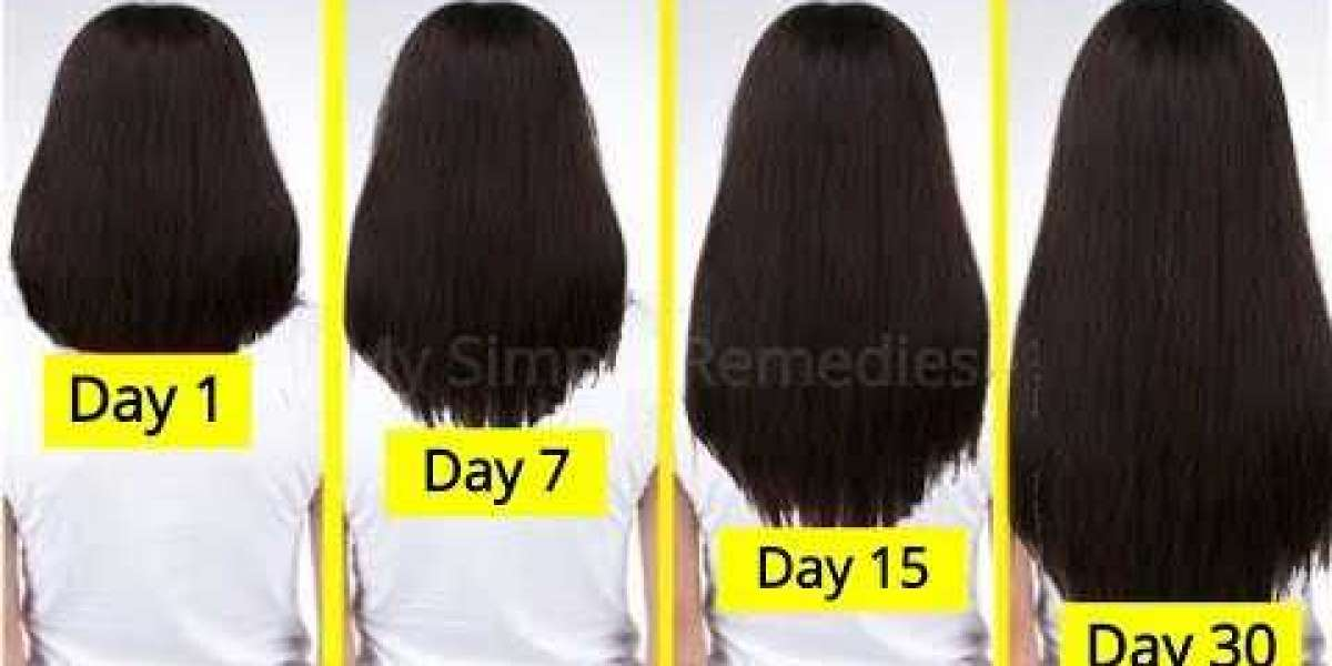 How To Get Your Hair To Grow Fast And Stay Healthy